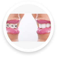 camarillo orthodontist speed braces