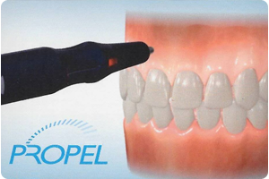 propel orthodontics in santa barbara ca